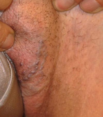 Варикоз в малом тазу у женщин - Все про варикоз